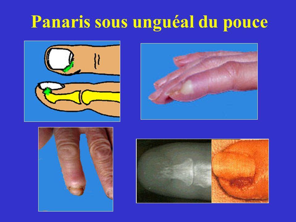 Panaris sous unguéal du pouce