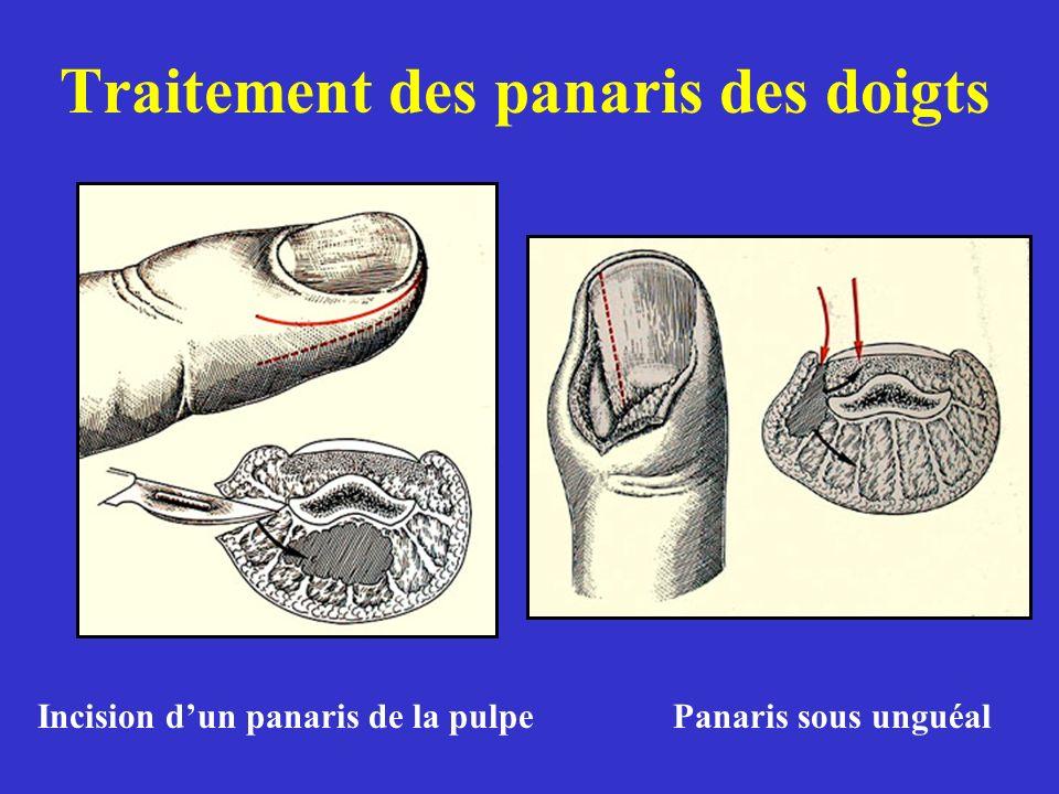 Traitement des panaris des doigts