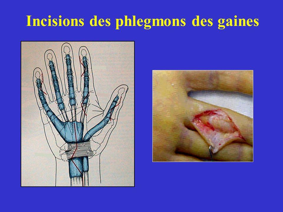 Incisions des phlegmons des gaines