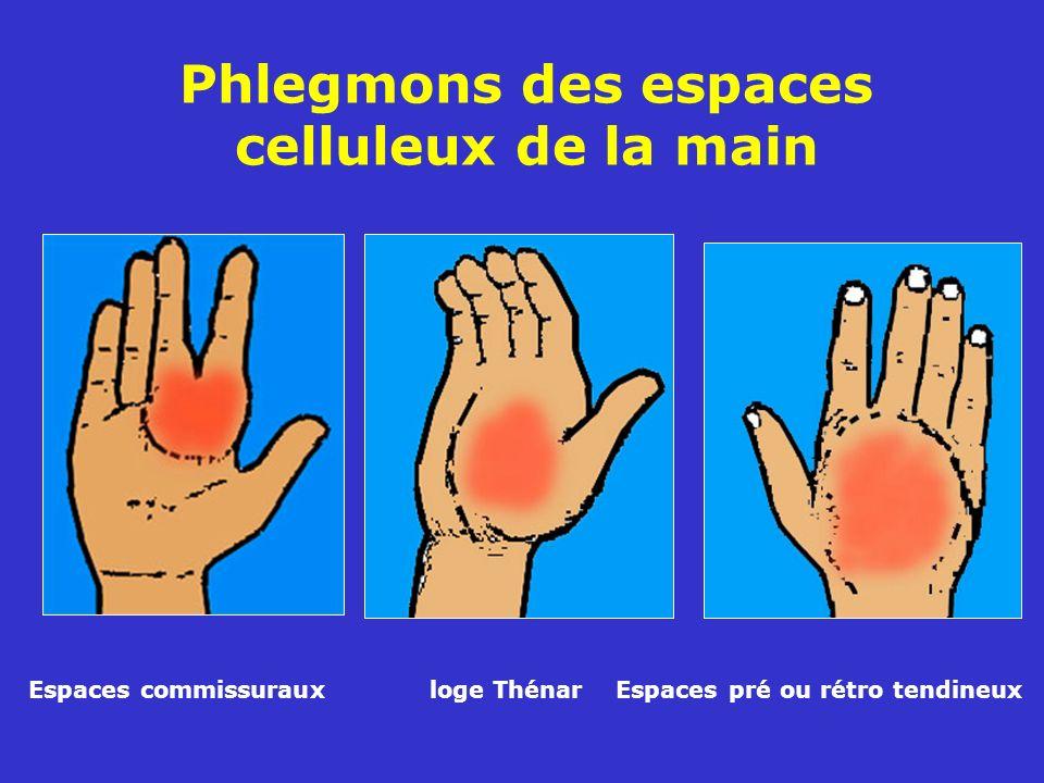 Phlegmons des espaces celluleux de la main