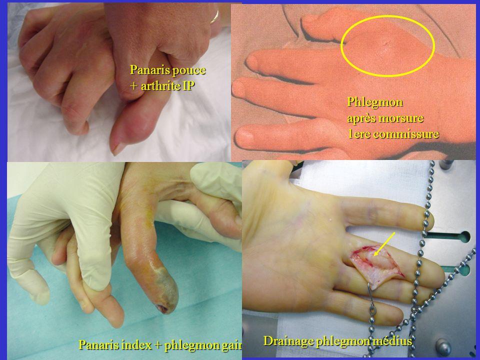 Panaris pouce + arthrite IP. Phlegmon. après morsure. 1ere commissure. Panaris index + phlegmon gaine.
