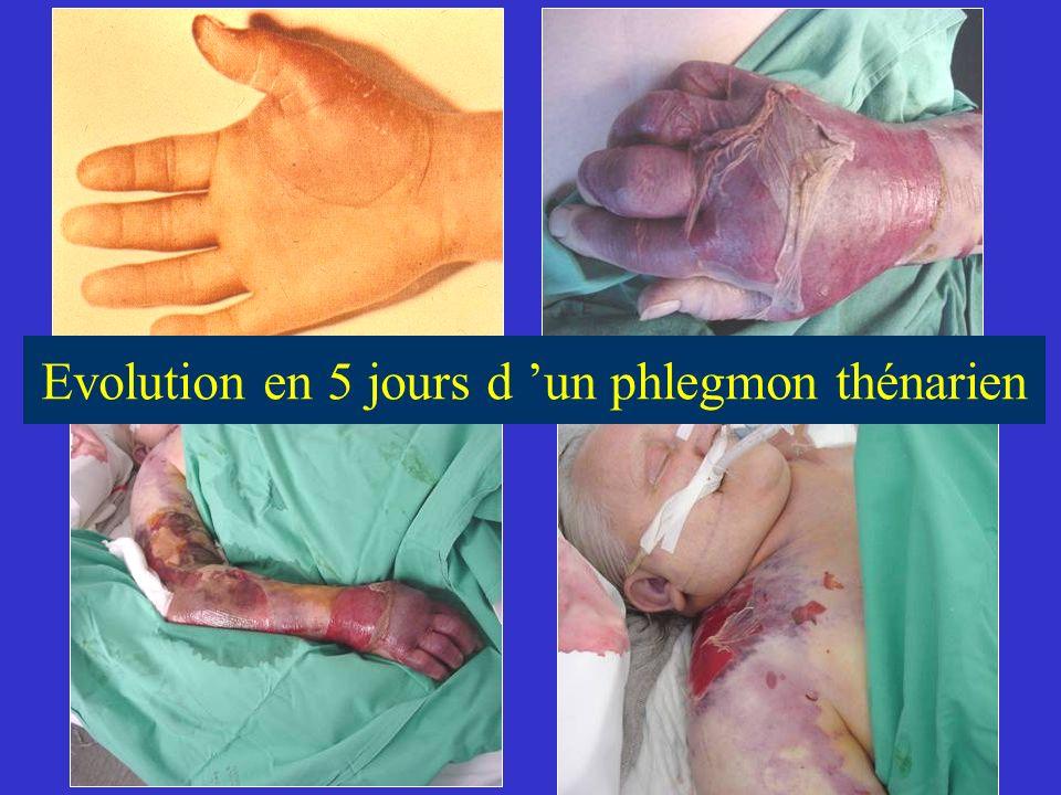Evolution en 5 jours d 'un phlegmon thénarien