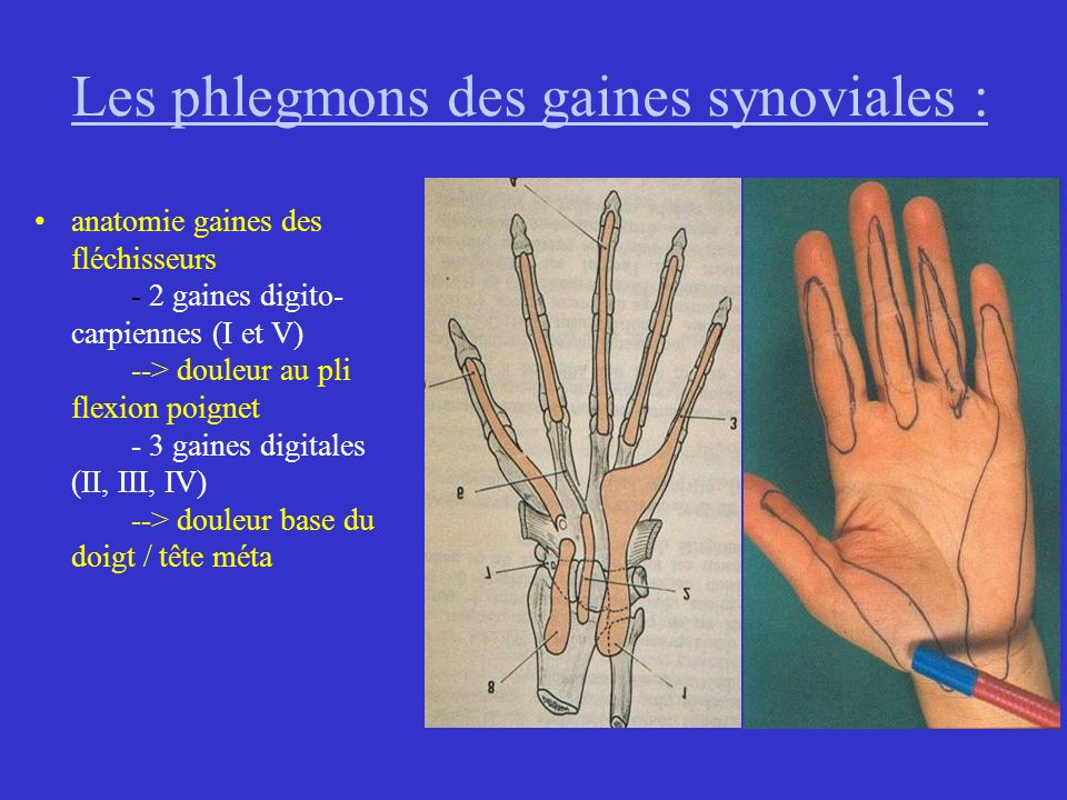 Les phlegmons des gaines synoviales :