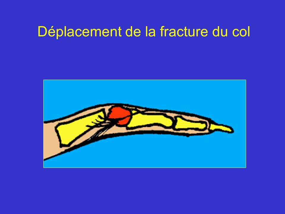 Déplacement de la fracture du col