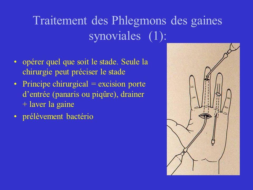 Traitement des Phlegmons des gaines synoviales (1):