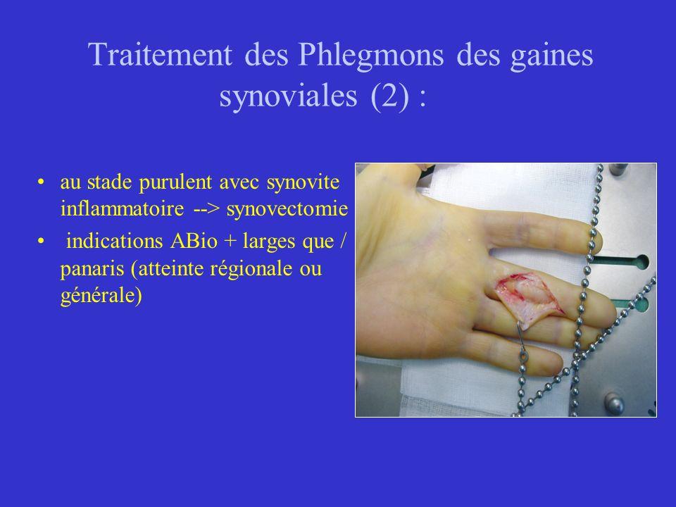 Traitement des Phlegmons des gaines synoviales (2) :