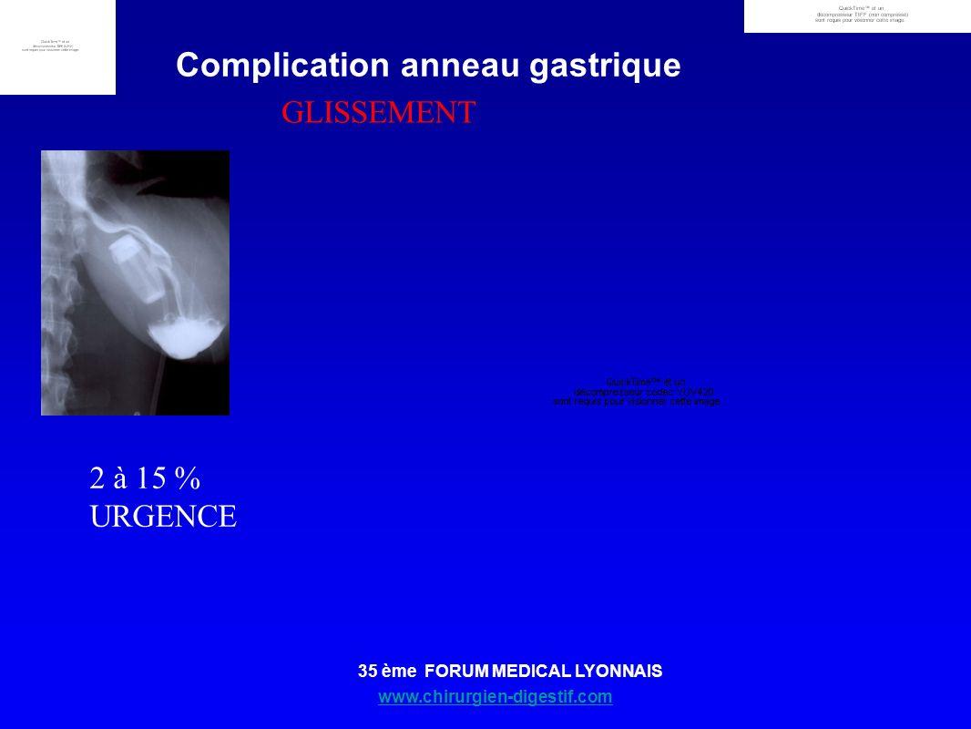 Complication anneau gastrique