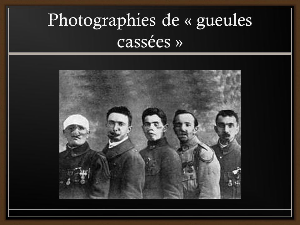 Photographies de « gueules cassées »