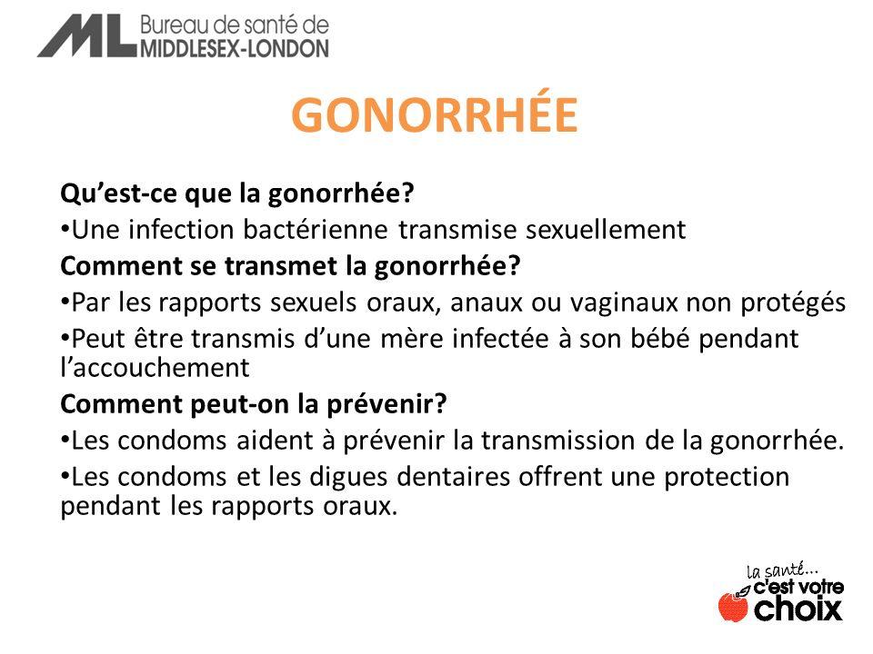 GONORRHÉE Qu'est-ce que la gonorrhée