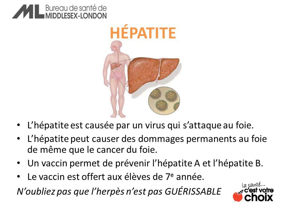HÉPATITE L'hépatite est causée par un virus qui s'attaque au foie.