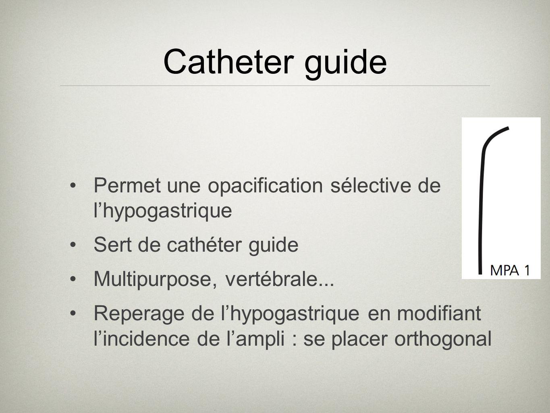 Catheter guide Permet une opacification sélective de l'hypogastrique