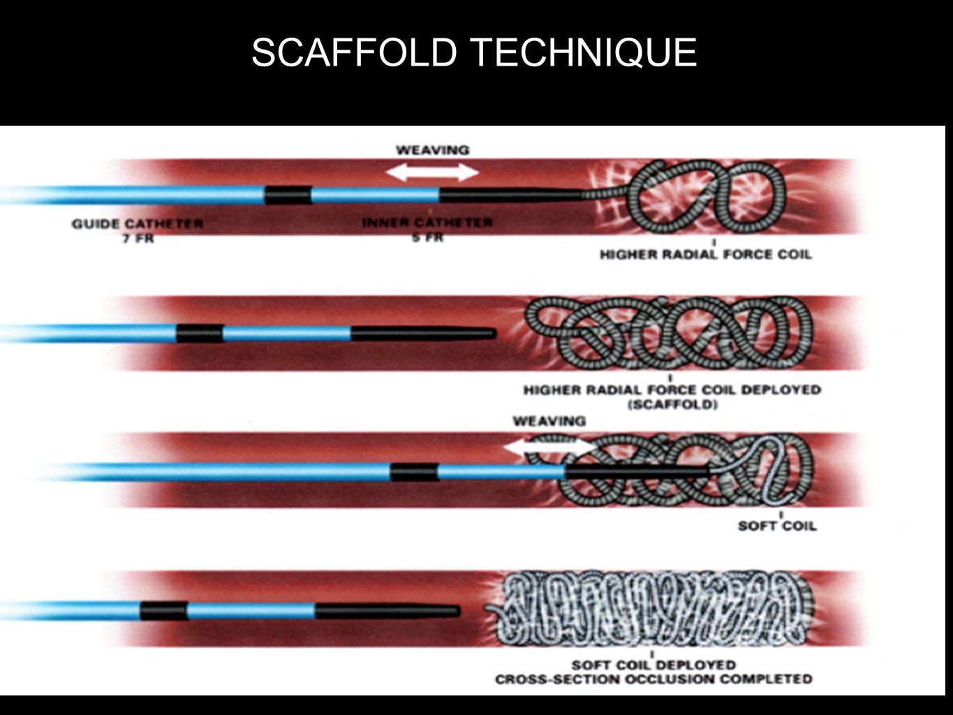 SCAFFOLD TECHNIQUE