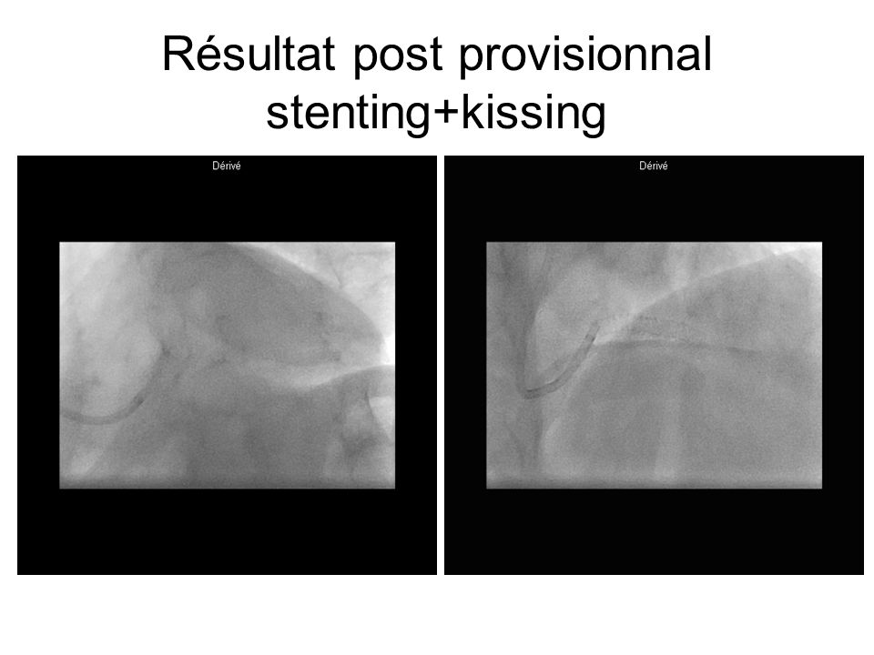 Résultat post provisionnal stenting+kissing