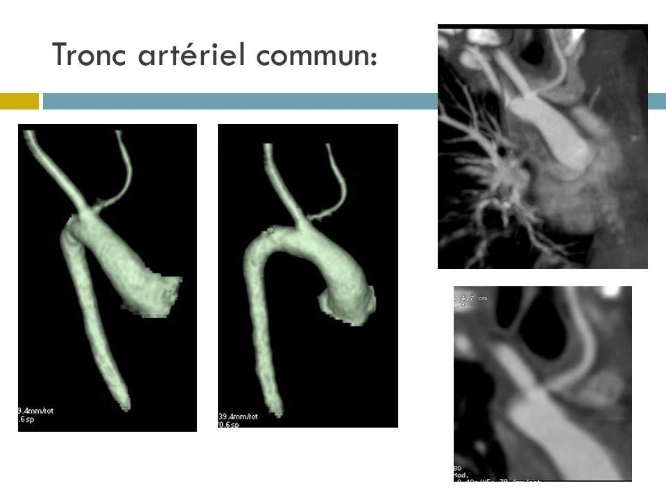 Tronc artériel commun: