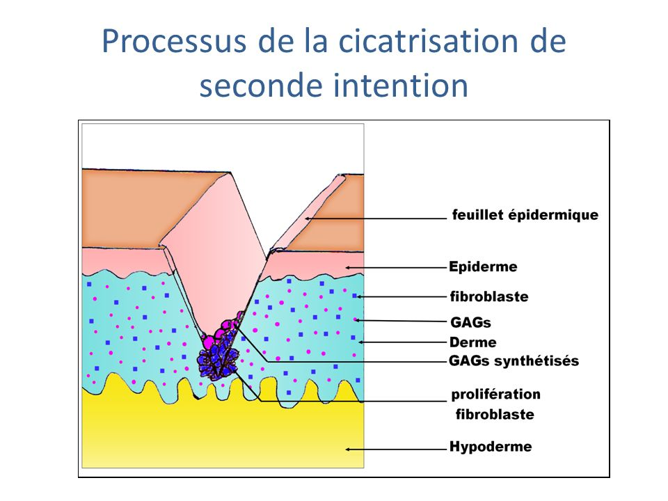 Processus de la cicatrisation de seconde intention