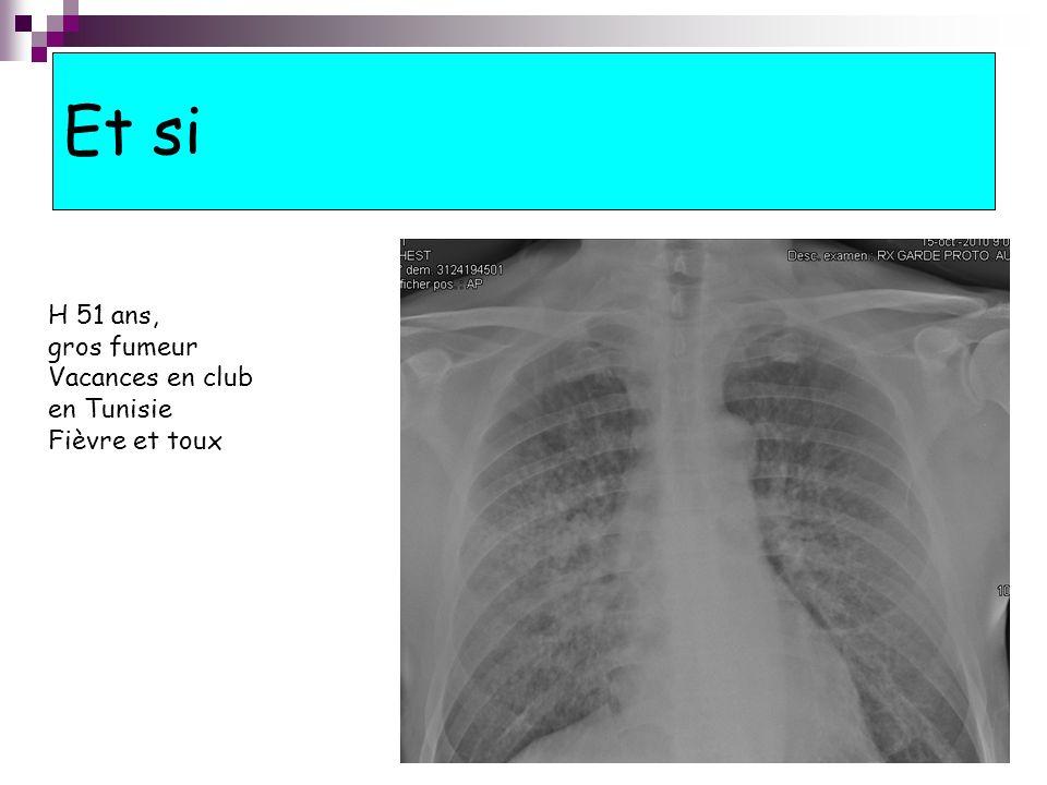 Et si H 51 ans, gros fumeur Vacances en club en Tunisie Fièvre et toux