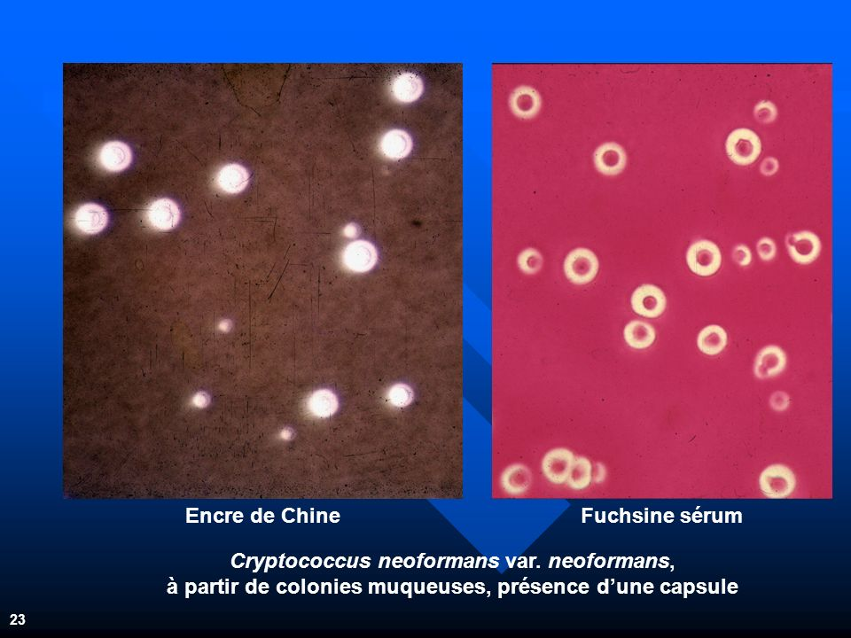 Cryptococcus neoformans var. neoformans,