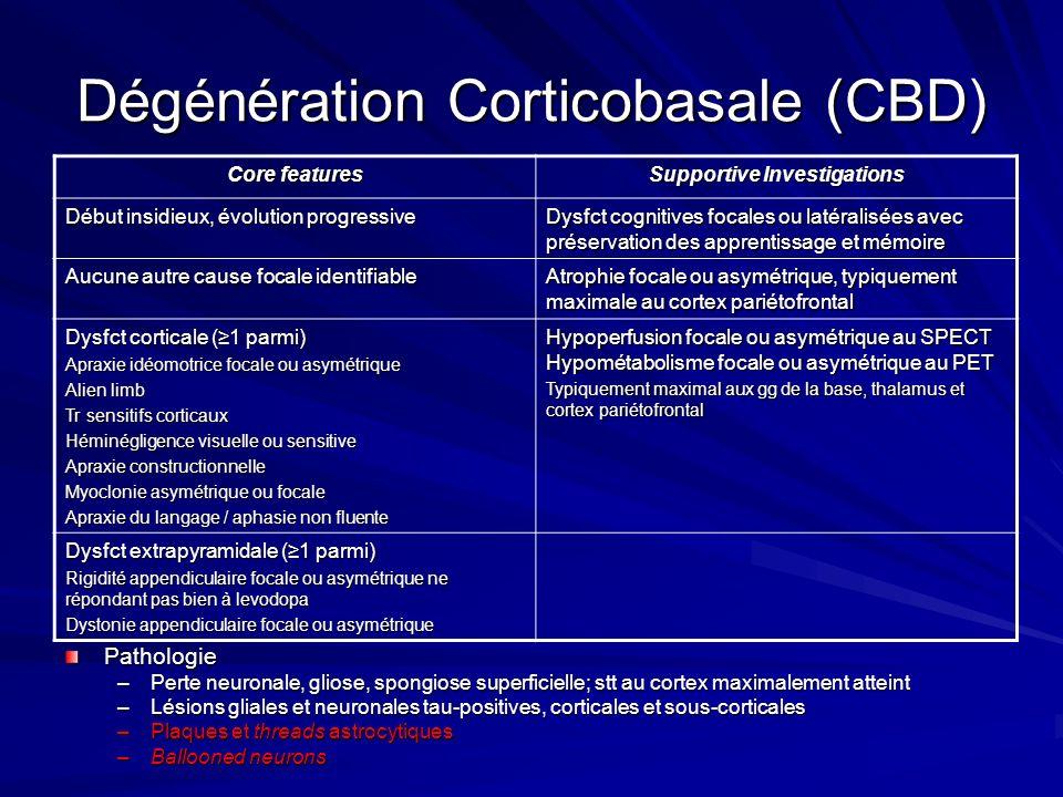 Dégénération Corticobasale (CBD)