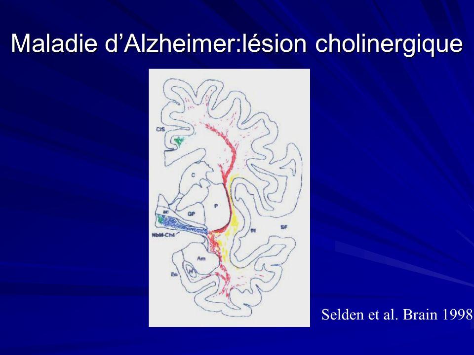 Maladie d'Alzheimer:lésion cholinergique
