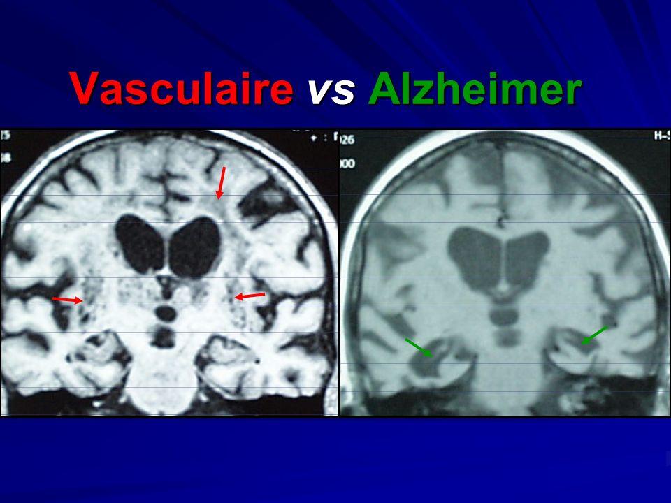 Vasculaire vs Alzheimer