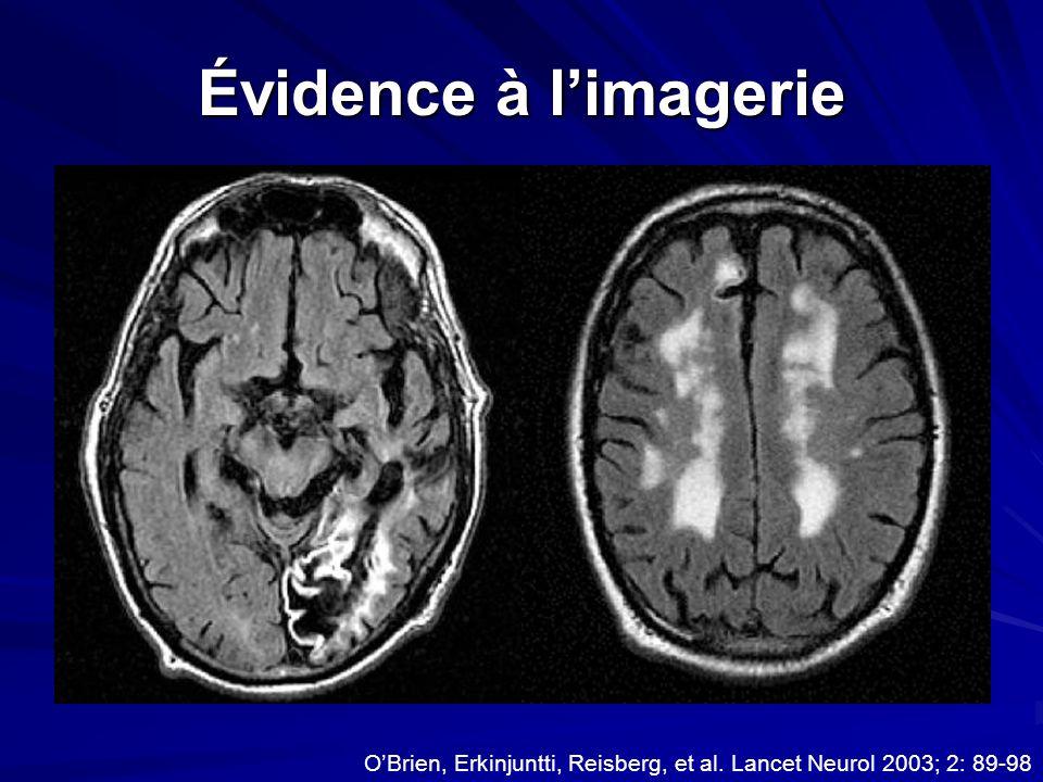 Évidence à l'imagerie O'Brien, Erkinjuntti, Reisberg, et al. Lancet Neurol 2003; 2: 89-98
