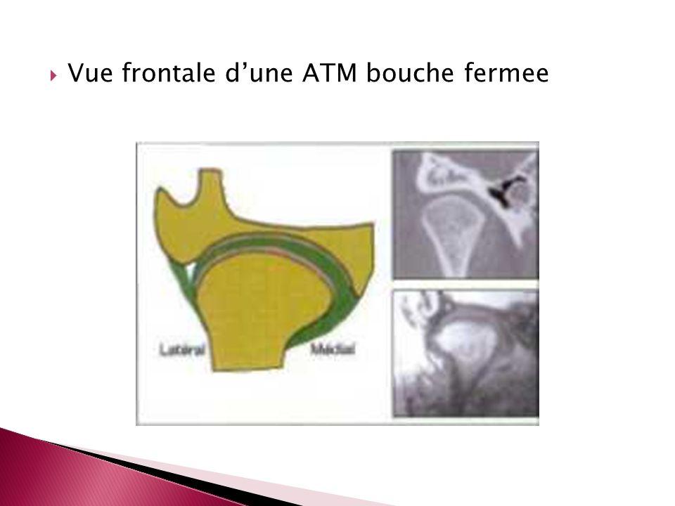 Vue frontale d'une ATM bouche fermee