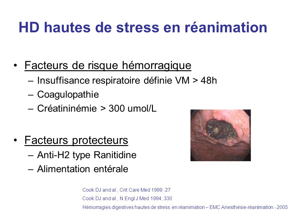 HD hautes de stress en réanimation
