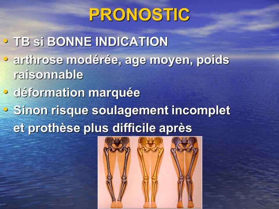 PRONOSTIC TB si BONNE INDICATION