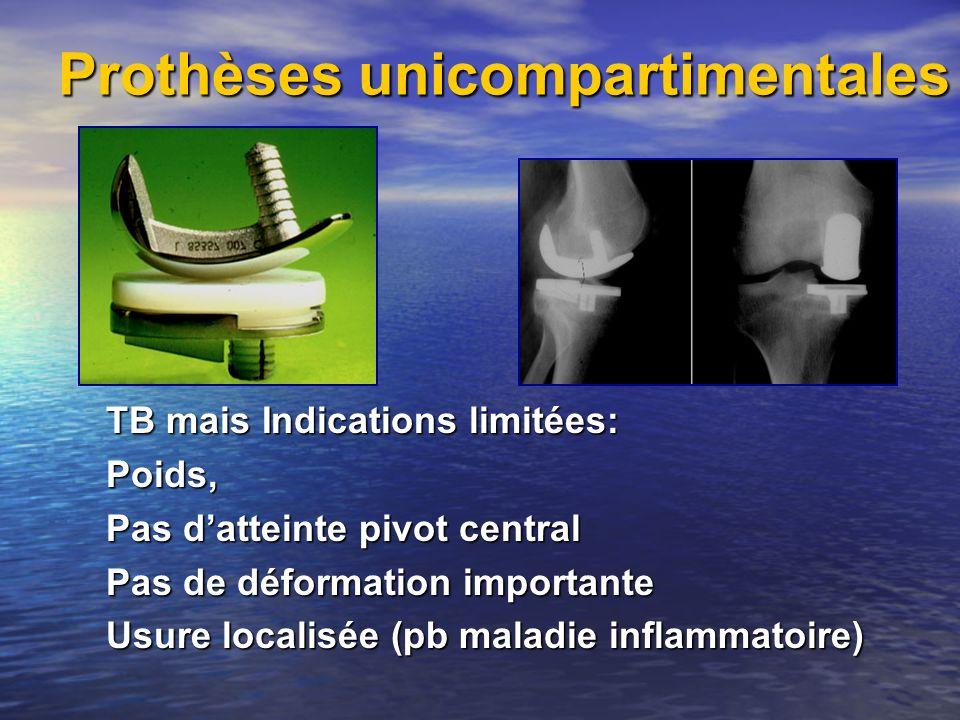 Prothèses unicompartimentales