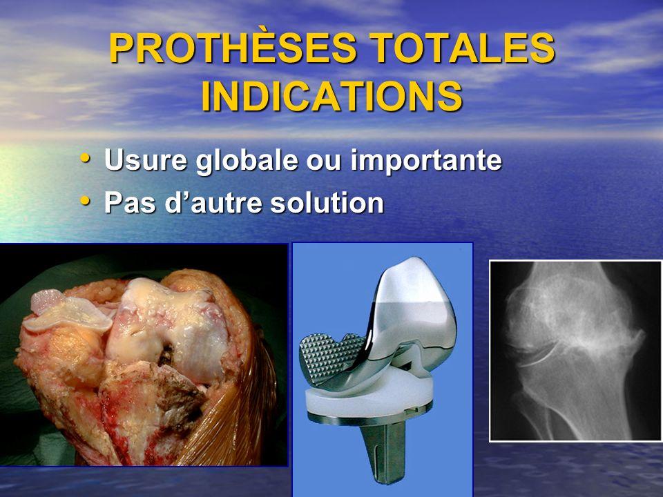 PROTHÈSES TOTALES INDICATIONS