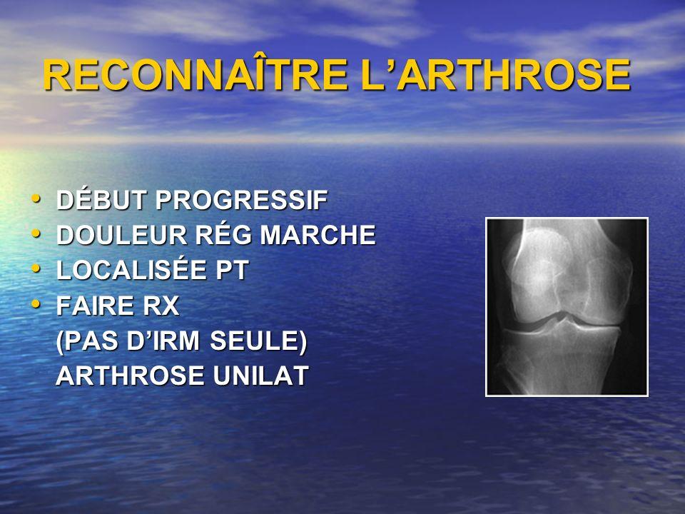 RECONNAÎTRE L'ARTHROSE