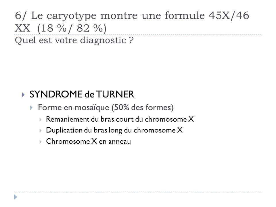 6/ Le caryotype montre une formule 45X/46 XX (18 %/ 82 %) Quel est votre diagnostic