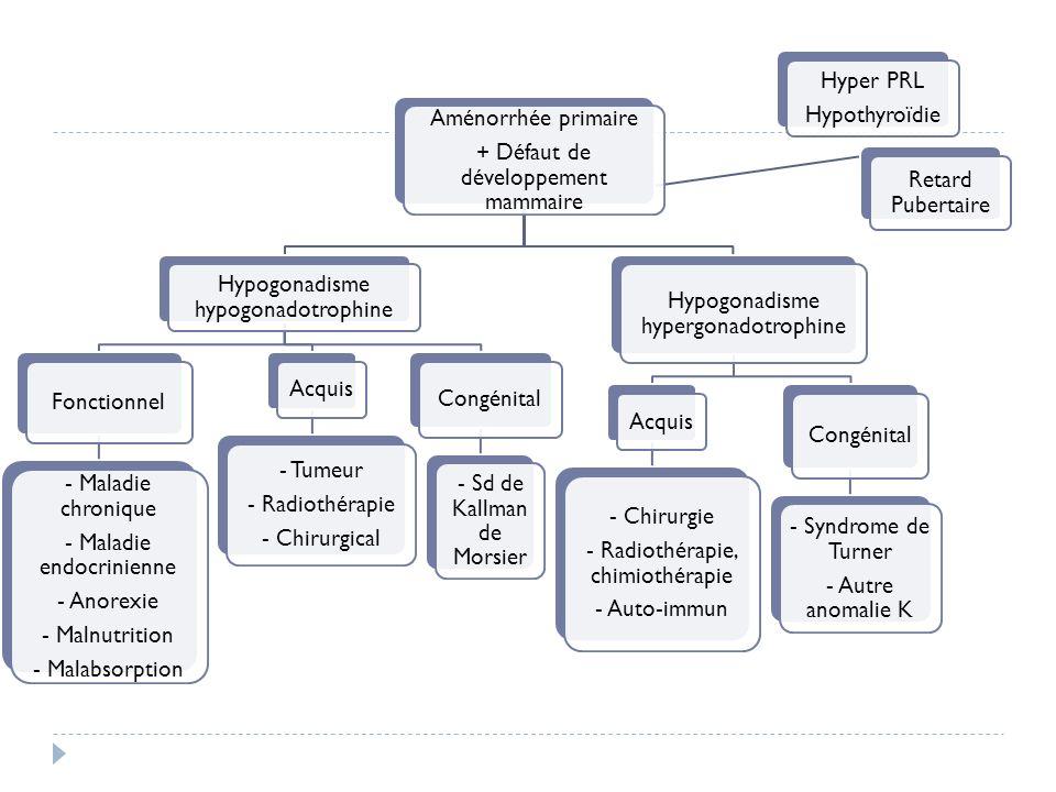 + Défaut de développement mammaire Hypogonadisme hypogonadotrophine