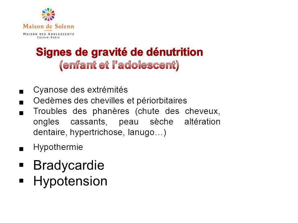 Signes de gravité de dénutrition (enfant et l'adolescent)