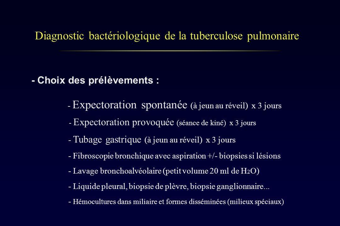 Diagnostic bactériologique de la tuberculose pulmonaire