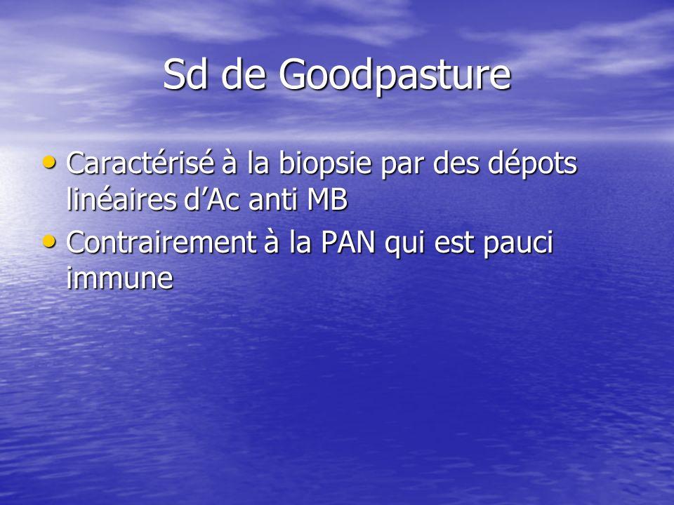 Sd de Goodpasture Caractérisé à la biopsie par des dépots linéaires d'Ac anti MB.
