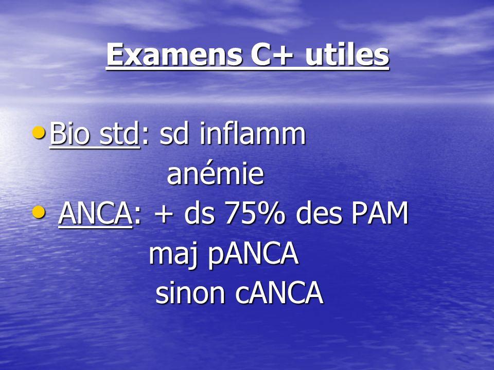 Examens C+ utiles Bio std: sd inflamm anémie ANCA: + ds 75% des PAM maj pANCA sinon cANCA