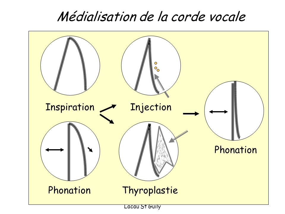 Médialisation de la corde vocale