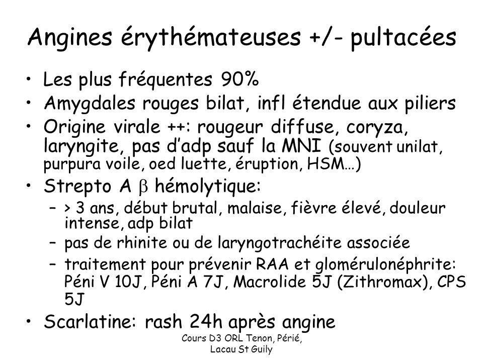 Angines érythémateuses +/- pultacées