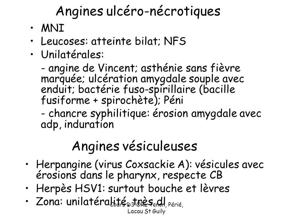 Angines ulcéro-nécrotiques