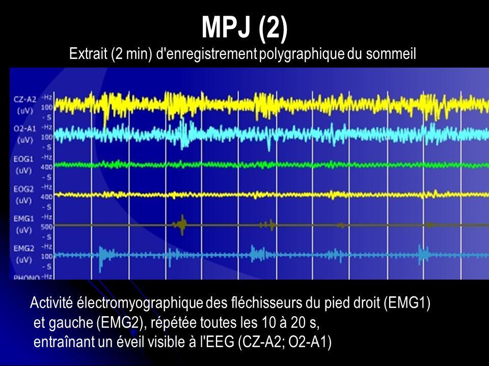 Extrait (2 min) d enregistrement polygraphique du sommeil