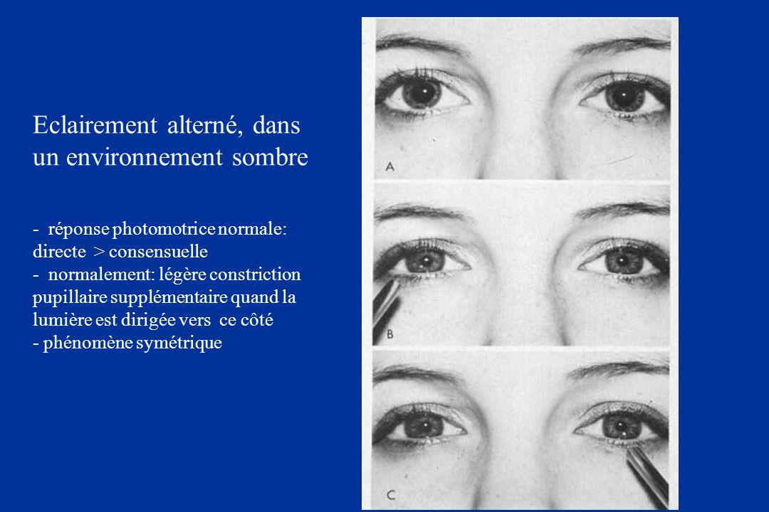 Eclairement alterné, dans un environnement sombre - réponse photomotrice normale: directe > consensuelle - normalement: légère constriction pupillaire supplémentaire quand la lumière est dirigée vers ce côté - phénomène symétrique