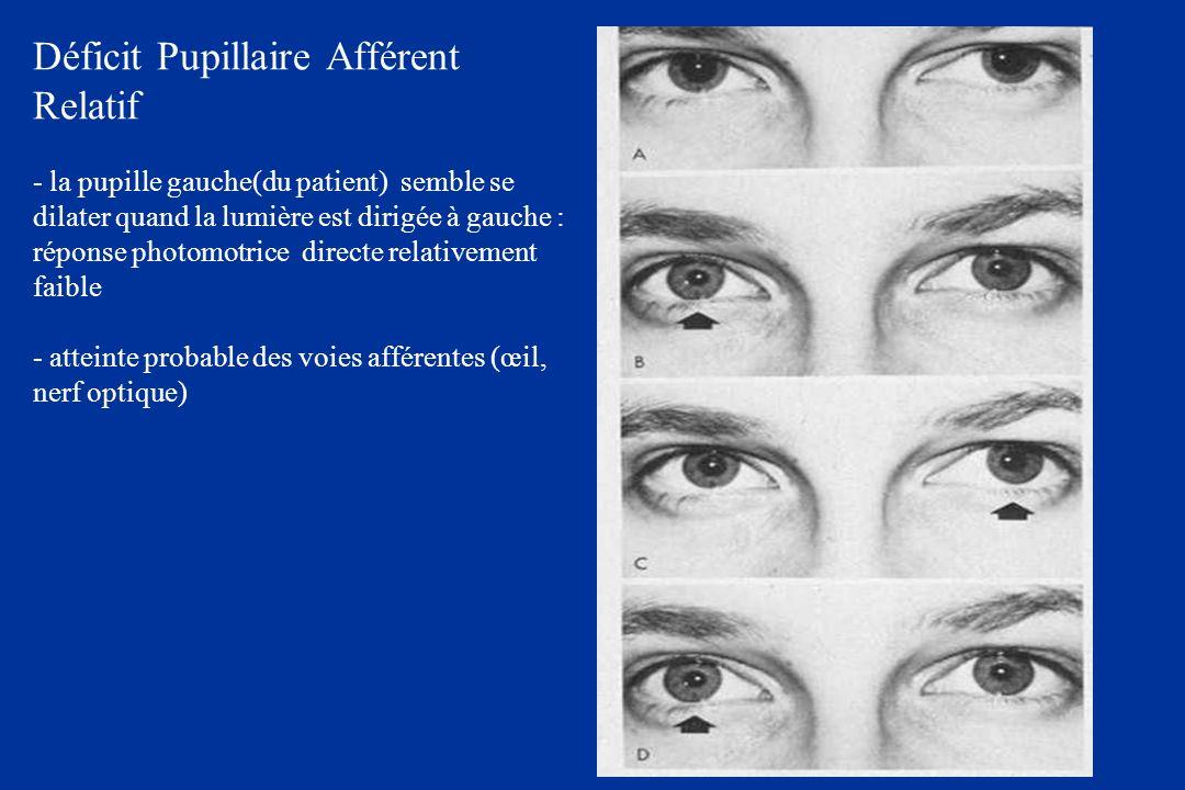 Déficit Pupillaire Afférent Relatif - la pupille gauche(du patient) semble se dilater quand la lumière est dirigée à gauche : réponse photomotrice directe relativement faible - atteinte probable des voies afférentes (œil, nerf optique)
