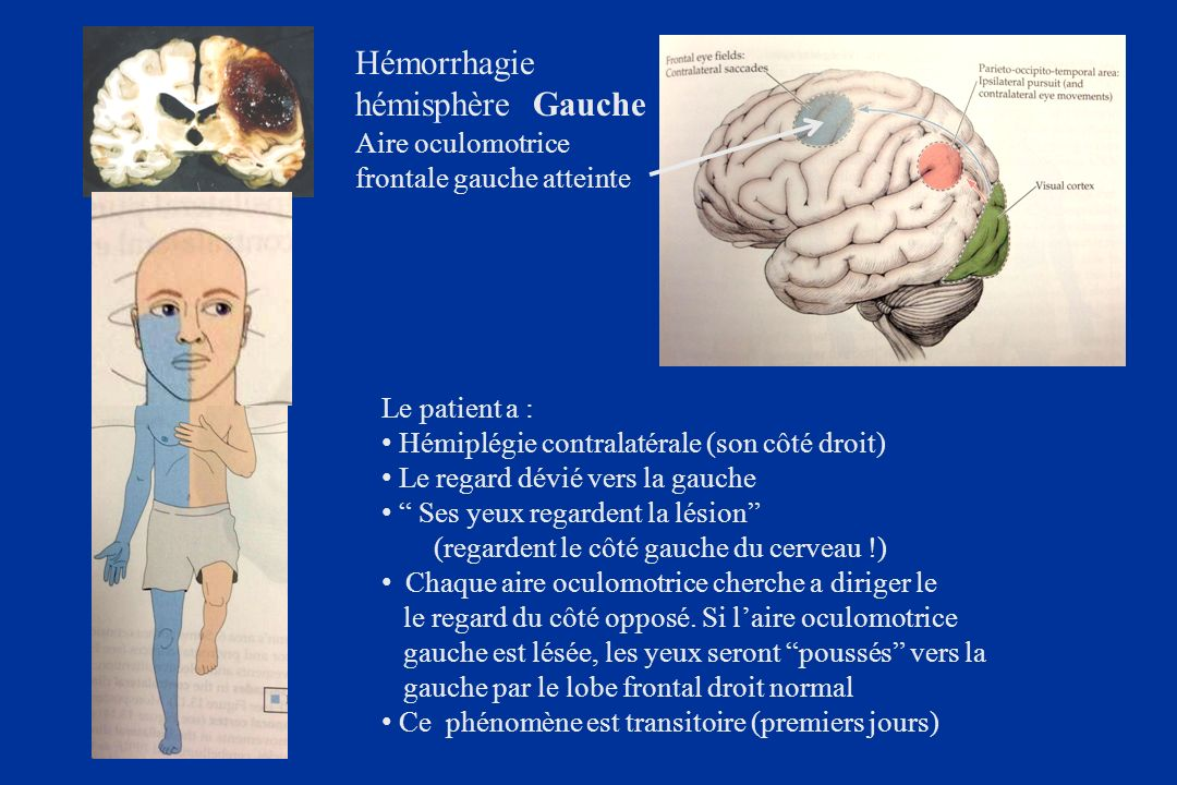 Hémorrhagie hémisphère Gauche