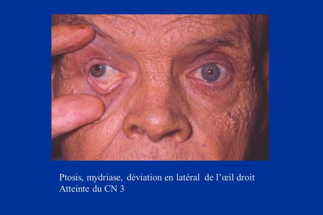 Ptosis, mydriase, déviation en latéral de l'œil droit