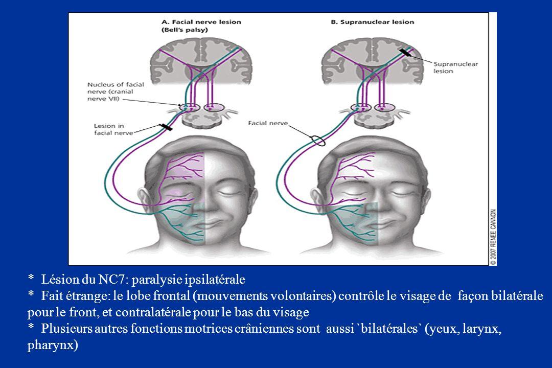 Lésion du NC7: paralysie ipsilatérale