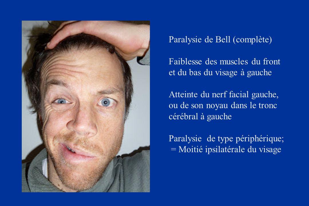 Paralysie de Bell (complète)