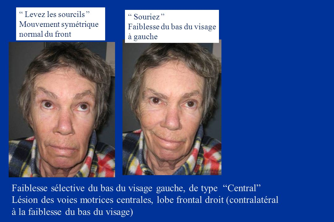 Faiblesse sélective du bas du visage gauche, de type Central