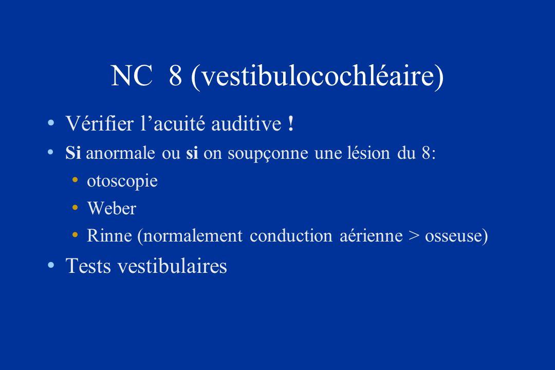 NC 8 (vestibulocochléaire)