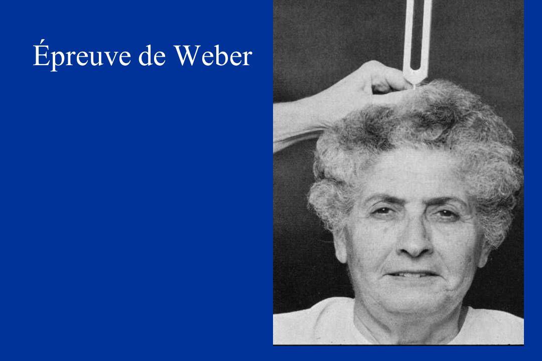 Épreuve de Weber